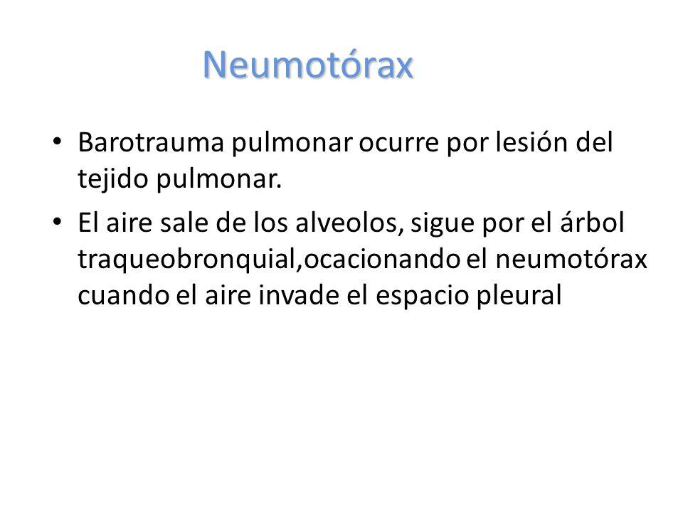 Neumotórax Barotrauma pulmonar ocurre por lesión del tejido pulmonar.