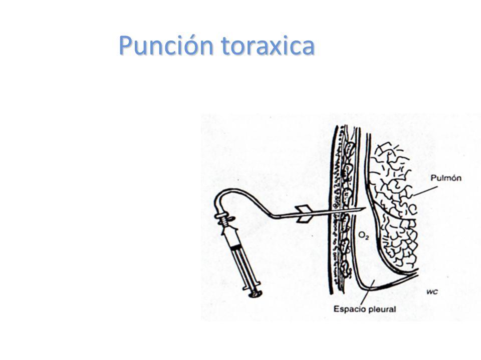 Punción toraxica