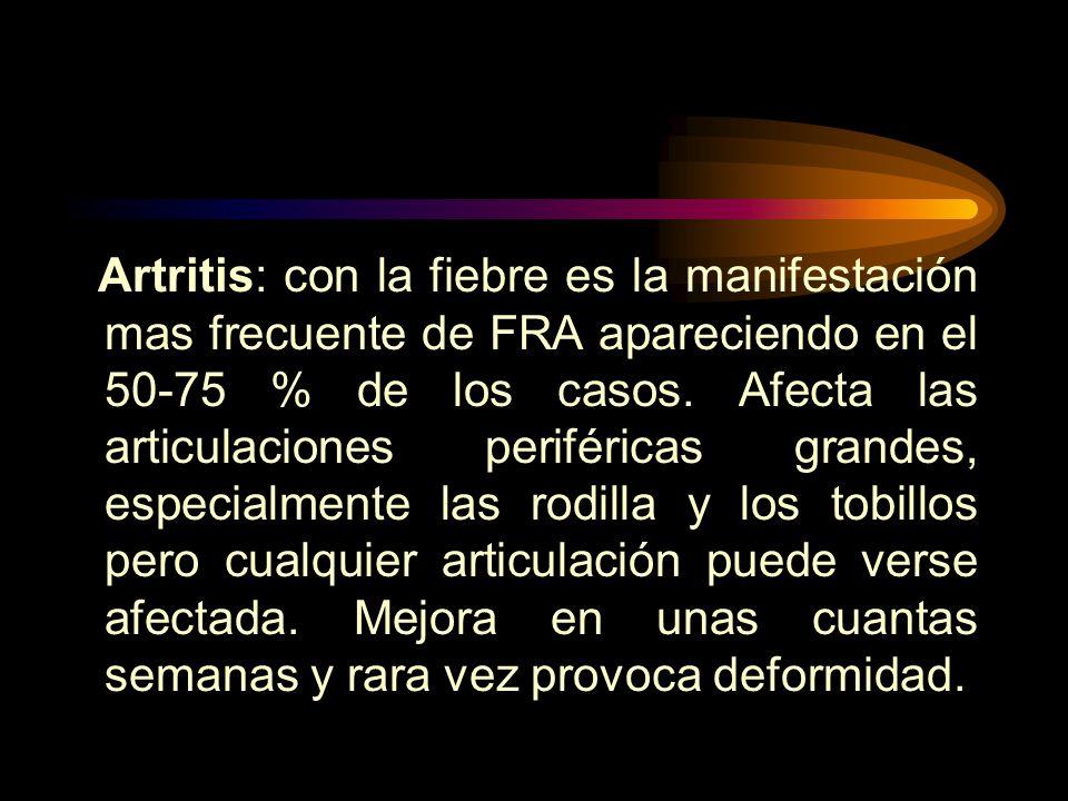 Artritis: con la fiebre es la manifestación mas frecuente de FRA apareciendo en el 50-75 % de los casos.