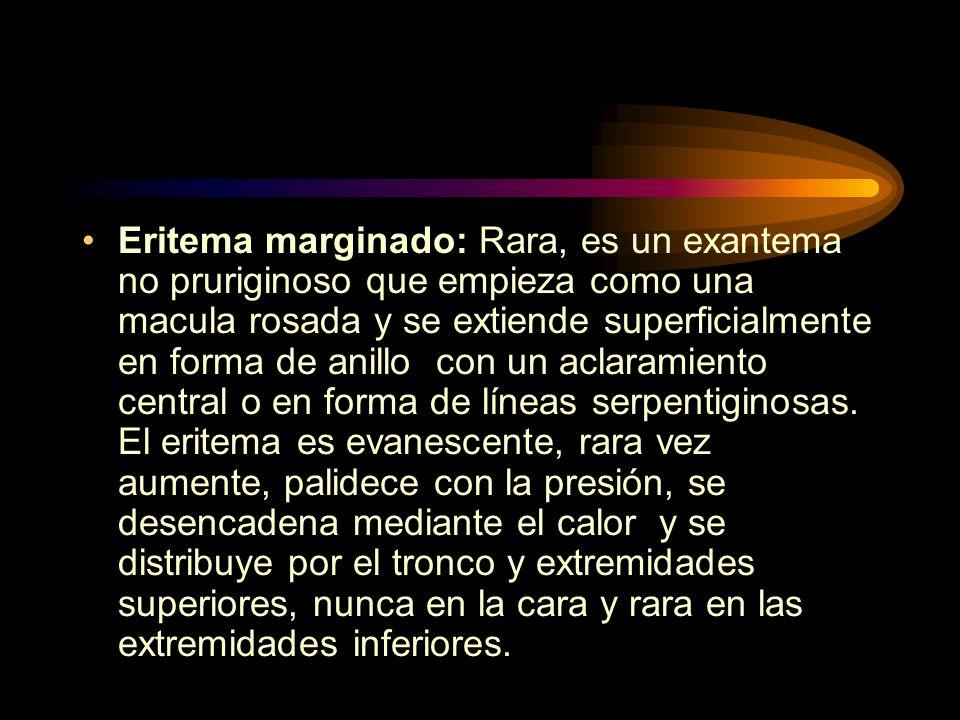 Eritema marginado: Rara, es un exantema no pruriginoso que empieza como una macula rosada y se extiende superficialmente en forma de anillo con un aclaramiento central o en forma de líneas serpentiginosas.