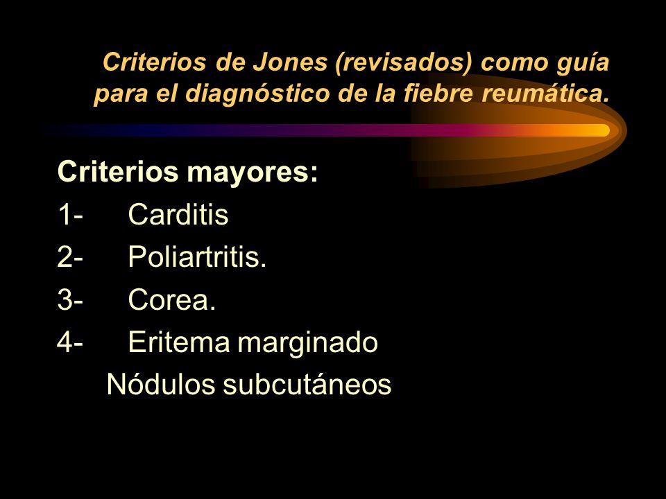 Criterios de Jones (revisados) como guía para el diagnóstico de la fiebre reumática.