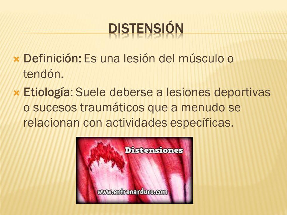  Definición: Es una lesión del músculo o tendón.