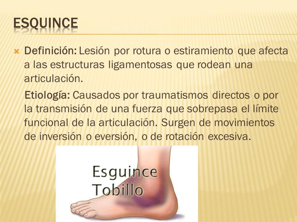  Definición: Lesión por rotura o estiramiento que afecta a las estructuras ligamentosas que rodean una articulación.