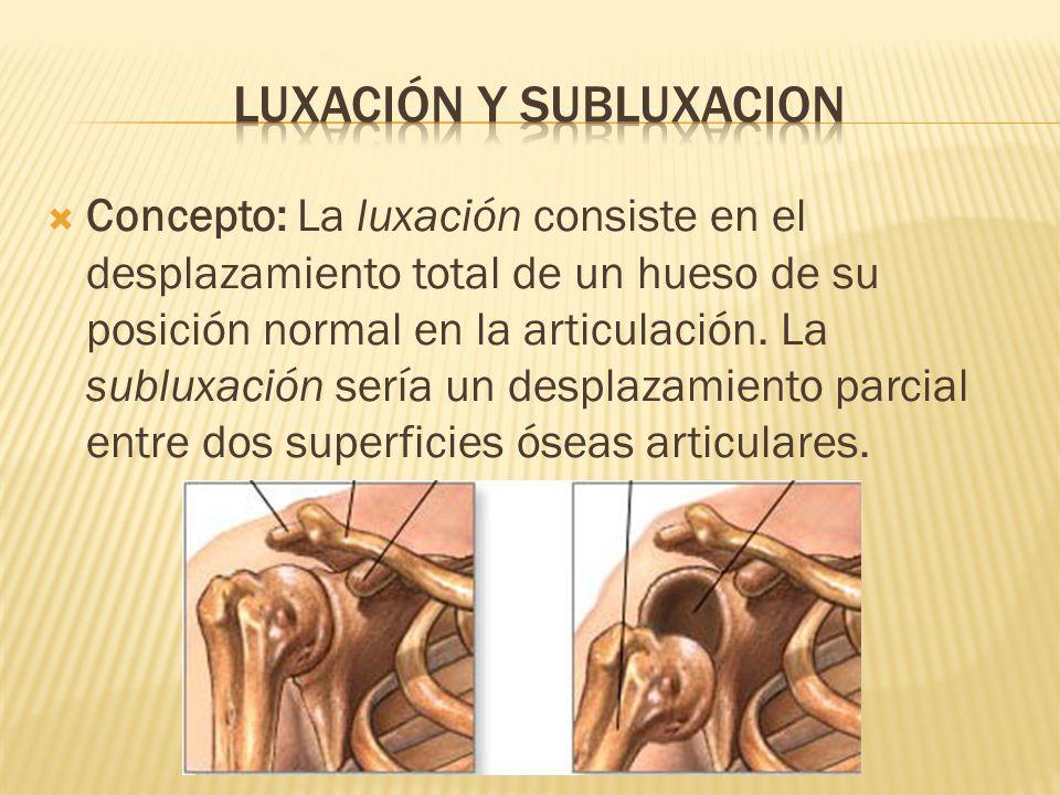  Concepto: La luxación consiste en el desplazamiento total de un hueso de su posición normal en la articulación.