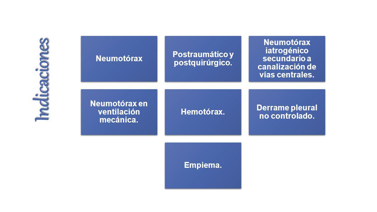 Indicaciones Neumotórax Postraumático y postquirúrgico.