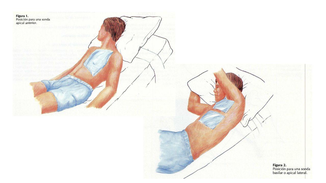 CÁMARA RECOLECTORA: compartimentos graduados donde se recoge el liquido pleural y permite controlar el volumen, la velocidad, y el tipo de drenado.