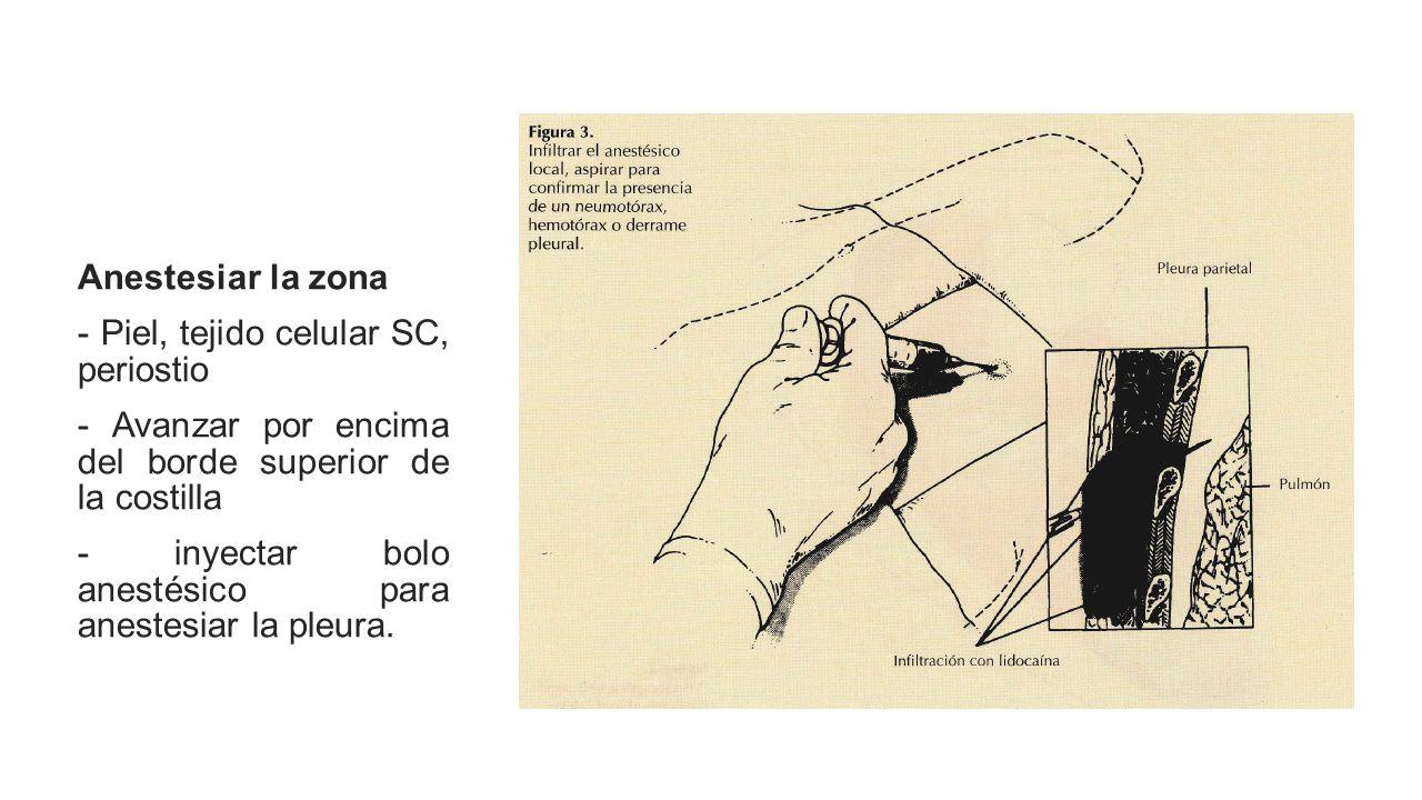 Anestesiar la zona - Piel, tejido celular SC, periostio - Avanzar por encima del borde superior de la costilla - inyectar bolo anestésico para anestesiar la pleura.