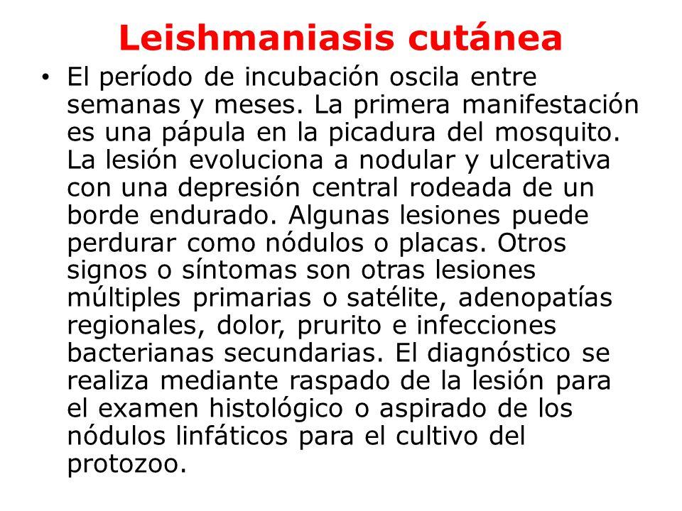 Leishmaniasis mucosa o mucocutánea La Leishmaniasis de la mucosa naso- orofarígea es relativamente poco frecuente.