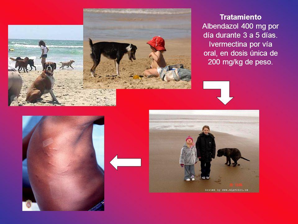 Tratamiento Albendazol 400 mg por día durante 3 a 5 días. Ivermectina por vía oral, en dosis única de 200 mg/kg de peso.