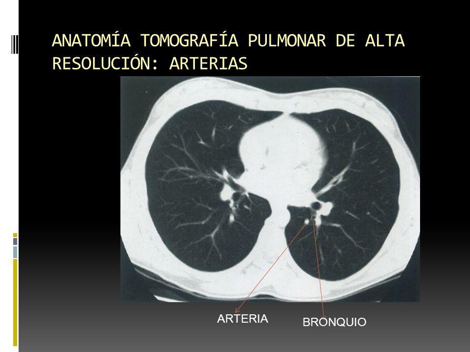 Contemporáneo Arteria Pulmonar Anatomía Radiología Motivo - Anatomía ...