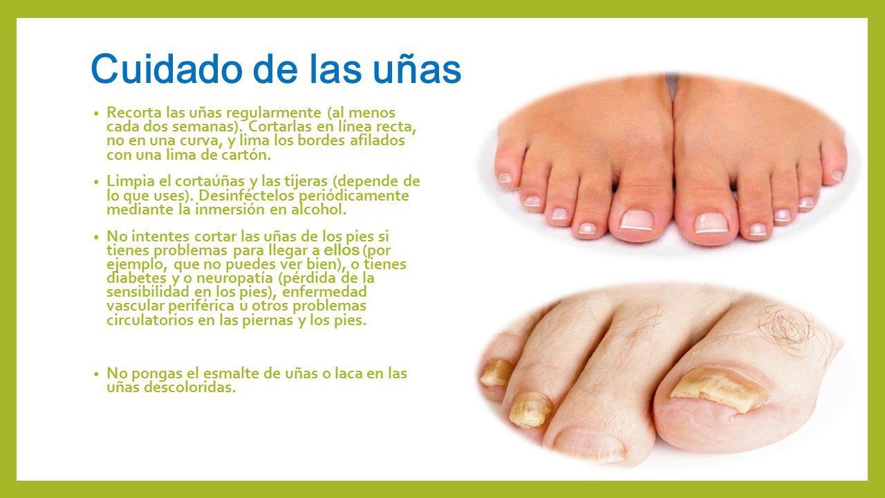 Que son los pies Se conoce como pie a las extremidades de las ...