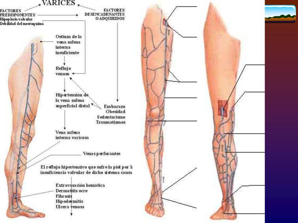 Encantador La Anatomía De La Vena Safena Colección de Imágenes ...