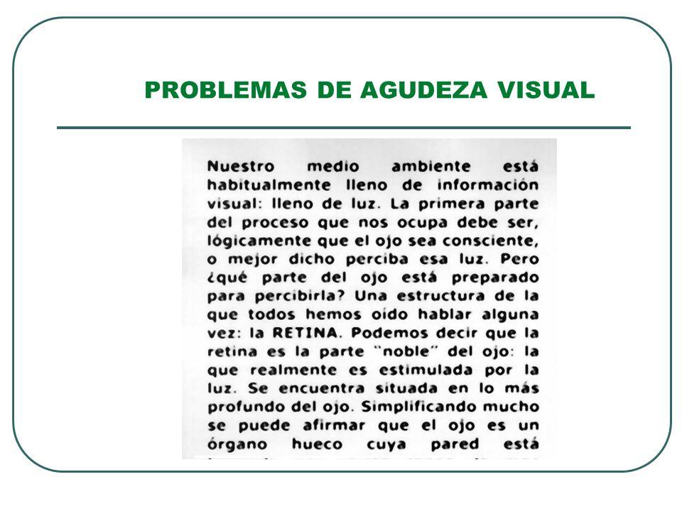 PROBLEMAS DE AGUDEZA VISUAL