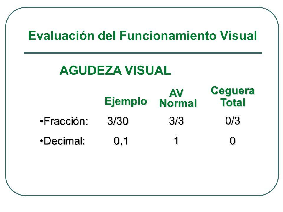 AGUDEZA VISUAL Ejemplo Ejemplo Fracción: 3/30Fracción: 3/30 Decimal: 0,1Decimal: 0,1 AV Normal Normal3/31 CegueraTotal0/30 Evaluación del Funcionamien