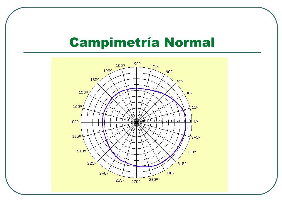 Campimetría Normal
