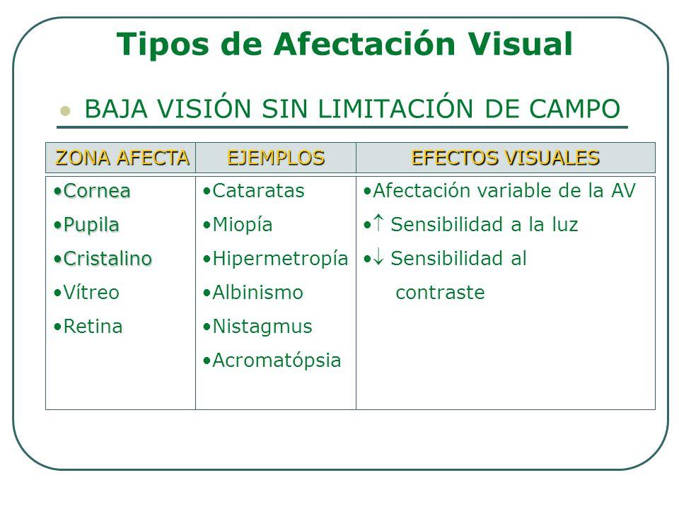 BAJA VISIÓN SIN LIMITACIÓN DE CAMPO Tipos de Afectación Visual ZONA AFECTA EJEMPLOS EFECTOS VISUALES CorneaCornea PupilaPupila CristalinoCristalino Ví