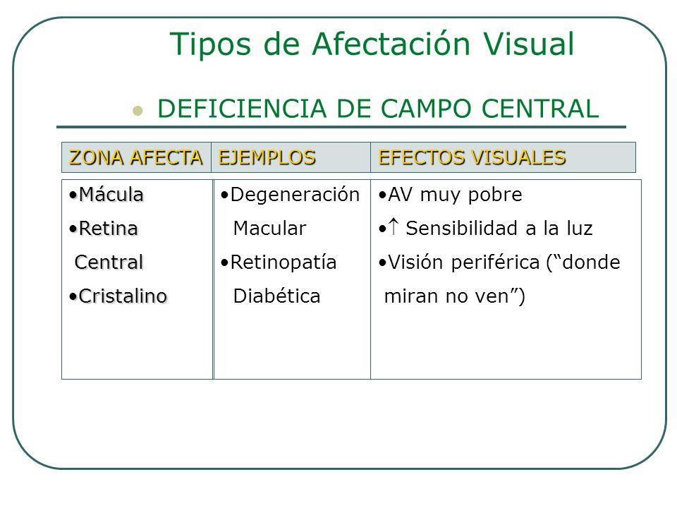 DEFICIENCIA DE CAMPO CENTRAL Tipos de Afectación Visual ZONA AFECTA EJEMPLOS EFECTOS VISUALES MáculaMácula RetinaRetina Central Central CristalinoCris