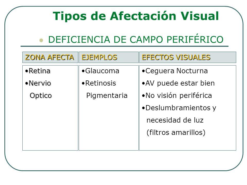 DEFICIENCIA DE CAMPO PERIFÉRICO Tipos de Afectación Visual ZONA AFECTA EJEMPLOS EFECTOS VISUALES RetinaRetina NervioNervio Optico Optico Glaucoma Reti