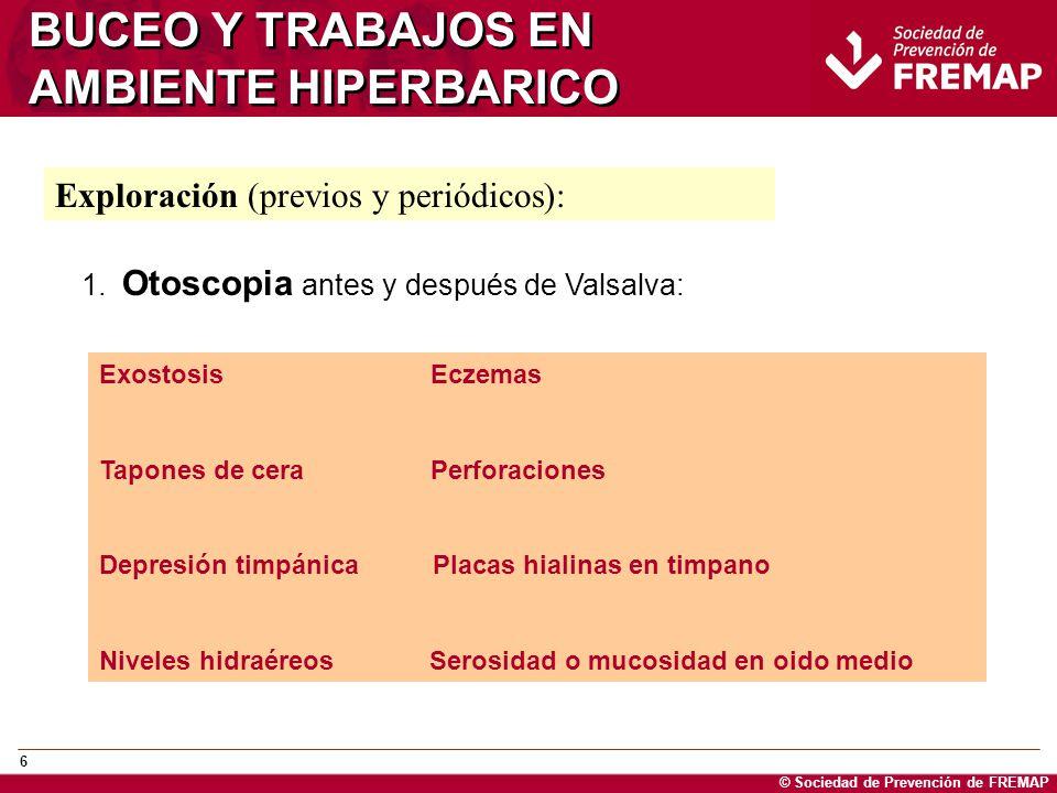 © Sociedad de Prevención de FREMAP 6 BUCEO Y TRABAJOS EN AMBIENTE HIPERBARICO Exploración (previos y periódicos): 1. Otoscopia antes y después de Vals