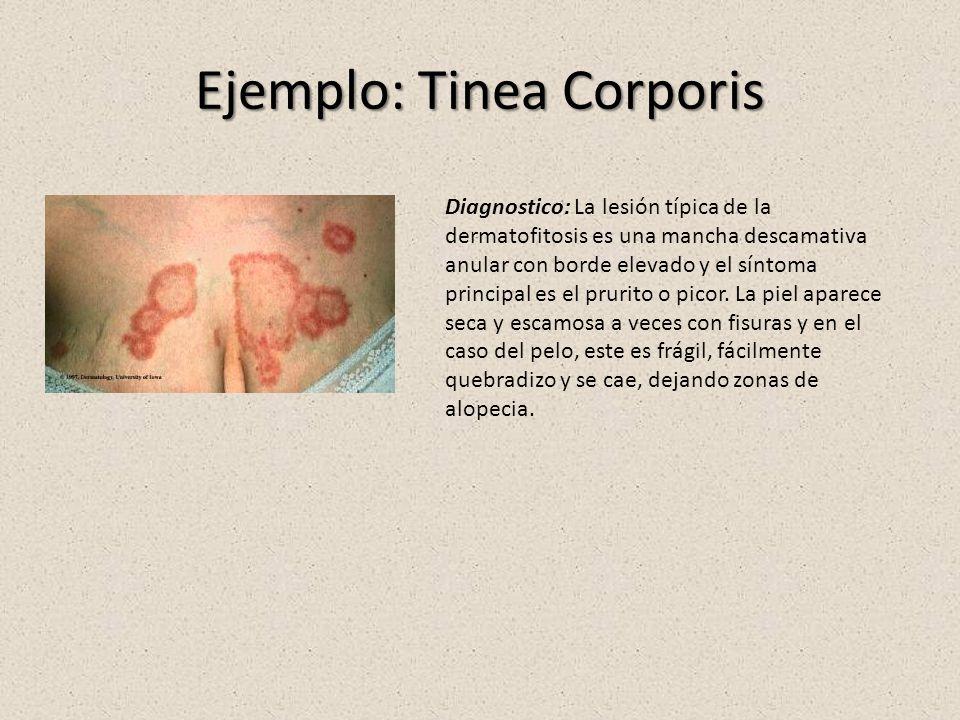 Ejemplo: Tinea Corporis Diagnostico: La lesión típica de la dermatofitosis es una mancha descamativa anular con borde elevado y el síntoma principal es el prurito o picor.