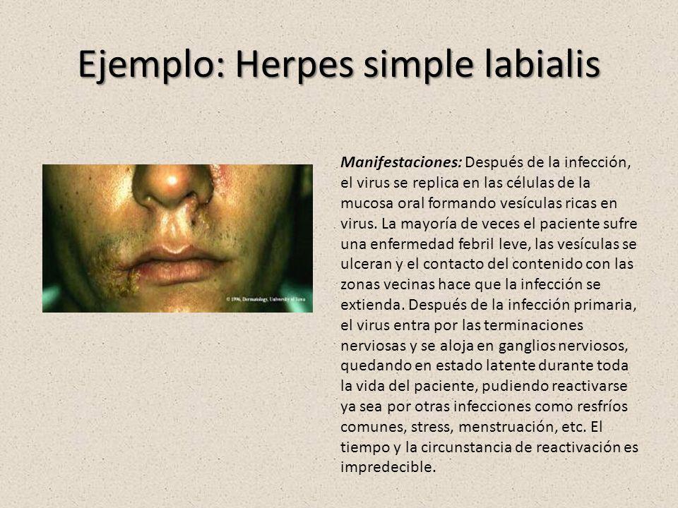 Ejemplo: Herpes simple labialis Manifestaciones: Después de la infección, el virus se replica en las células de la mucosa oral formando vesículas rica