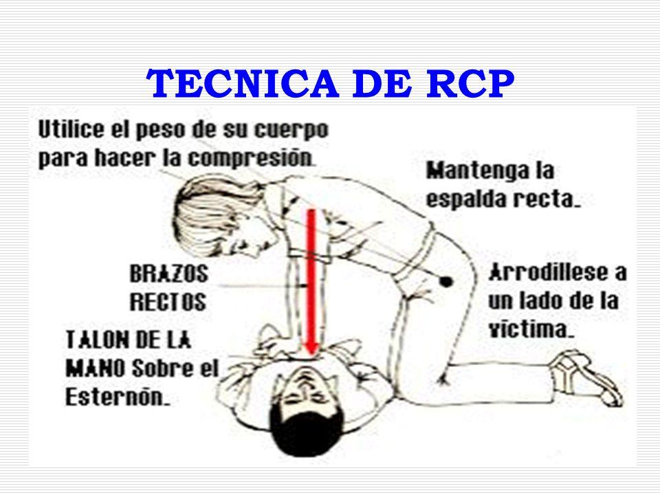TECNICA DE RCP