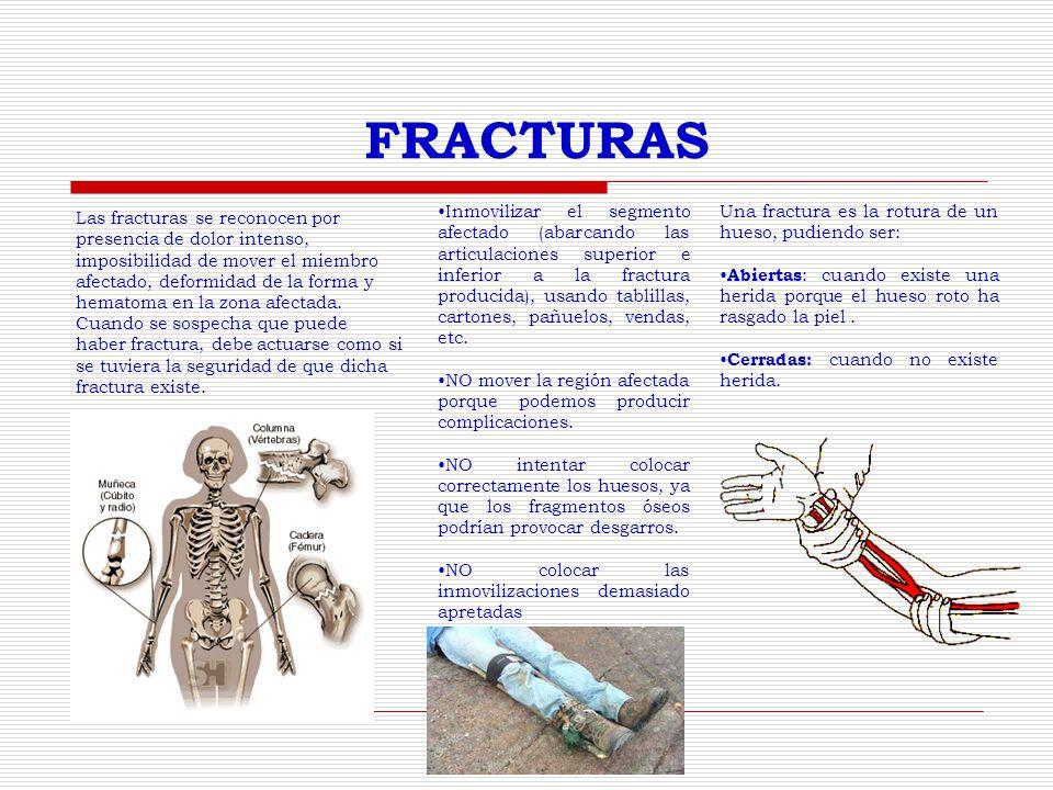 FRACTURAS Las fracturas se reconocen por presencia de dolor intenso, imposibilidad de mover el miembro afectado, deformidad de la forma y hematoma en la zona afectada.