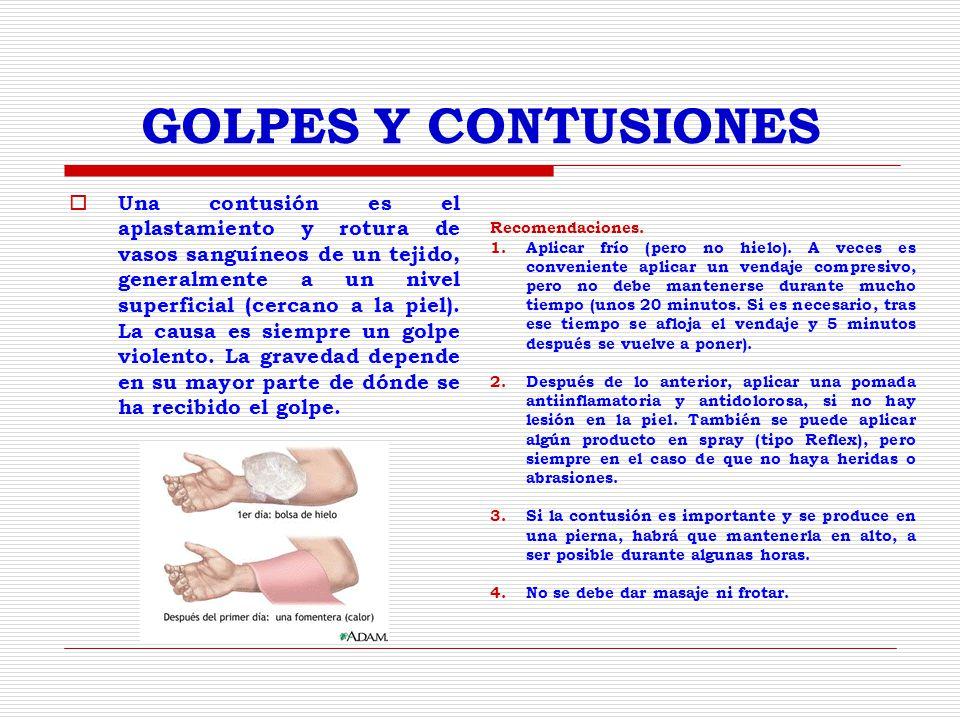 GOLPES Y CONTUSIONES Una contusión es el aplastamiento y rotura de vasos sanguíneos de un tejido, generalmente a un nivel superficial (cercano a la piel).