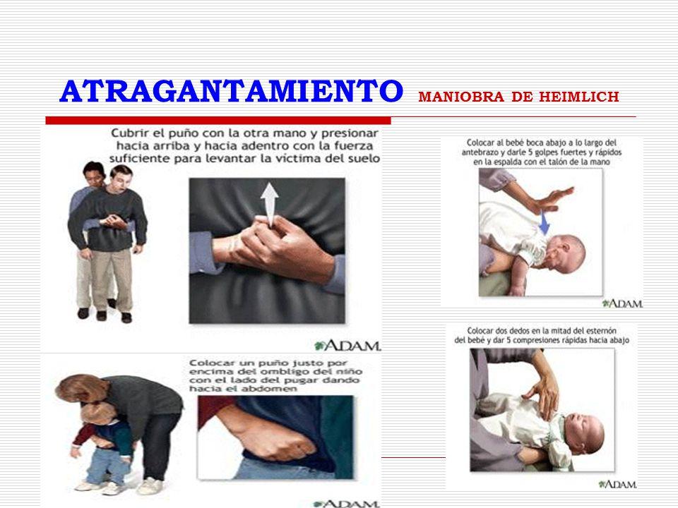ATRAGANTAMIENTO MANIOBRA DE HEIMLICH