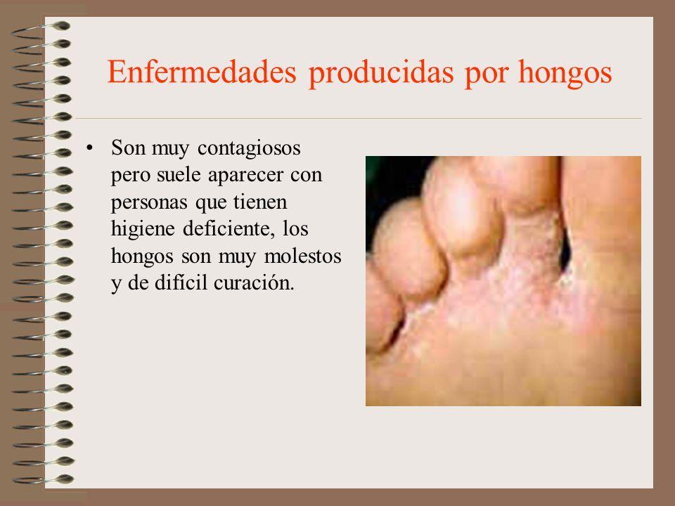 Enfermedades producidas por hongos Son muy contagiosos pero suele aparecer con personas que tienen higiene deficiente, los hongos son muy molestos y d