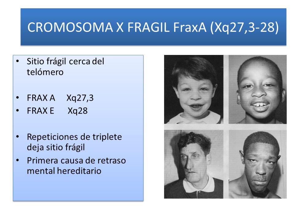 CROMOSOMA X FRAGIL FraxA (Xq27,3-28) Sitio frágil cerca del telómero FRAX A Xq27,3 FRAX E Xq28 Repeticiones de triplete deja sitio frágil Primera causa de retraso mental hereditario Sitio frágil cerca del telómero FRAX A Xq27,3 FRAX E Xq28 Repeticiones de triplete deja sitio frágil Primera causa de retraso mental hereditario