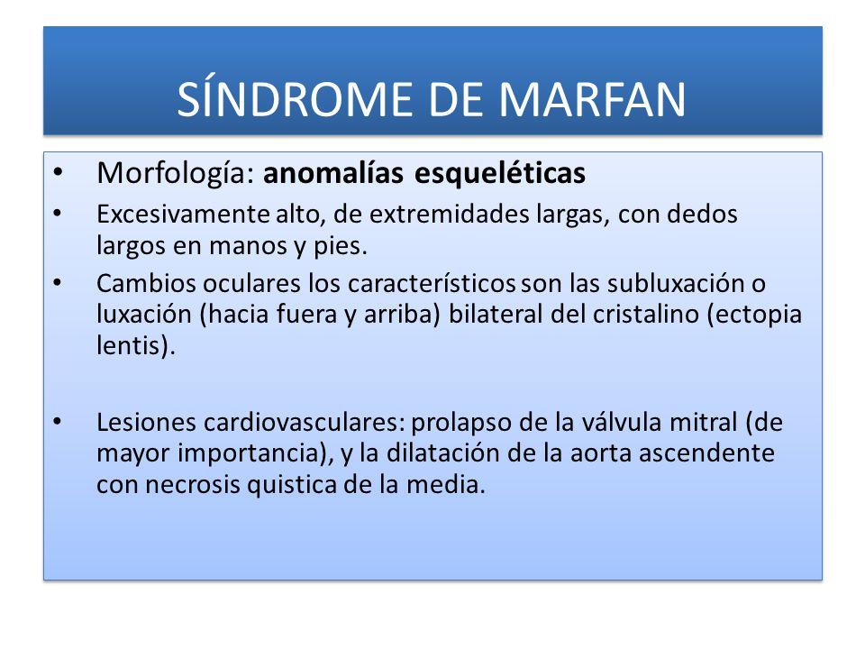 SÍNDROME DE MARFAN Morfología: anomalías esqueléticas Excesivamente alto, de extremidades largas, con dedos largos en manos y pies.