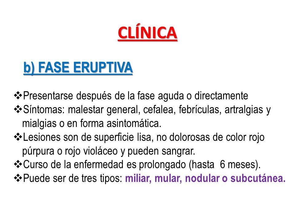 CLÍNICA b) FASE ERUPTIVA Presentarse después de la fase aguda o directamente Síntomas: malestar general, cefalea, febrículas, artralgias y mialgias o