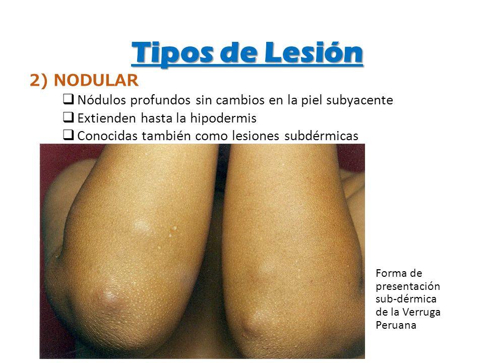 Tipos de Lesión 2) NODULAR Nódulos profundos sin cambios en la piel subyacente Extienden hasta la hipodermis Conocidas también como lesiones subdérmic
