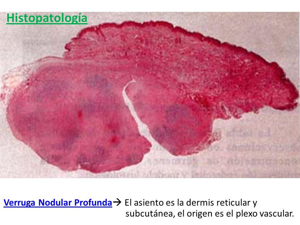 Verruga Nodular Profunda El asiento es la dermis reticular y subcutánea, el origen es el plexo vascular. Histopatología