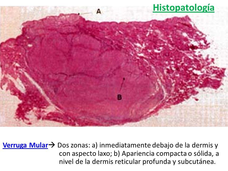 Verruga Mular Dos zonas: a) inmediatamente debajo de la dermis y con aspecto laxo; b) Apariencia compacta o sólida, a nivel de la dermis reticular pro