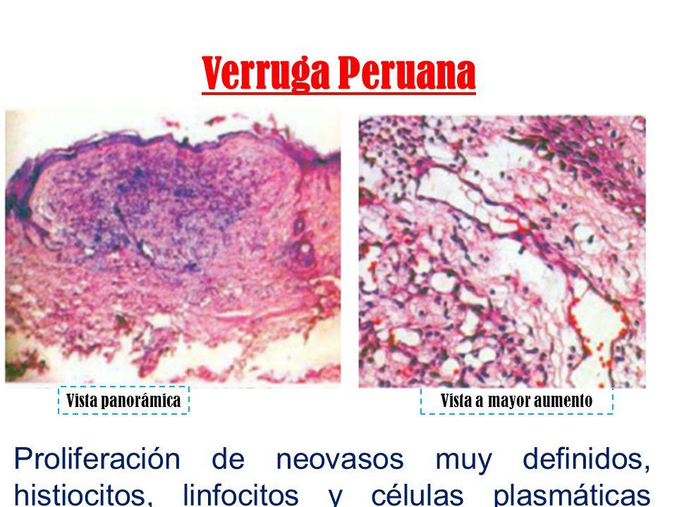 Verruga Peruana Vista panorámicaVista a mayor aumento Proliferación de neovasos muy definidos, histiocitos, linfocitos y células plasmáticas escasas.