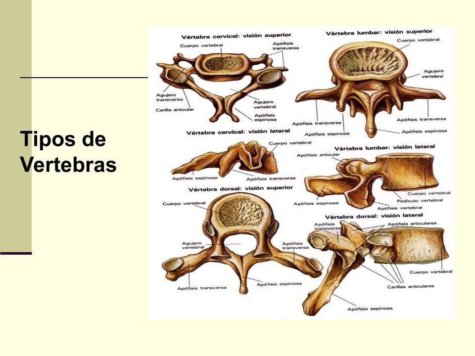 Tipos de Vertebras