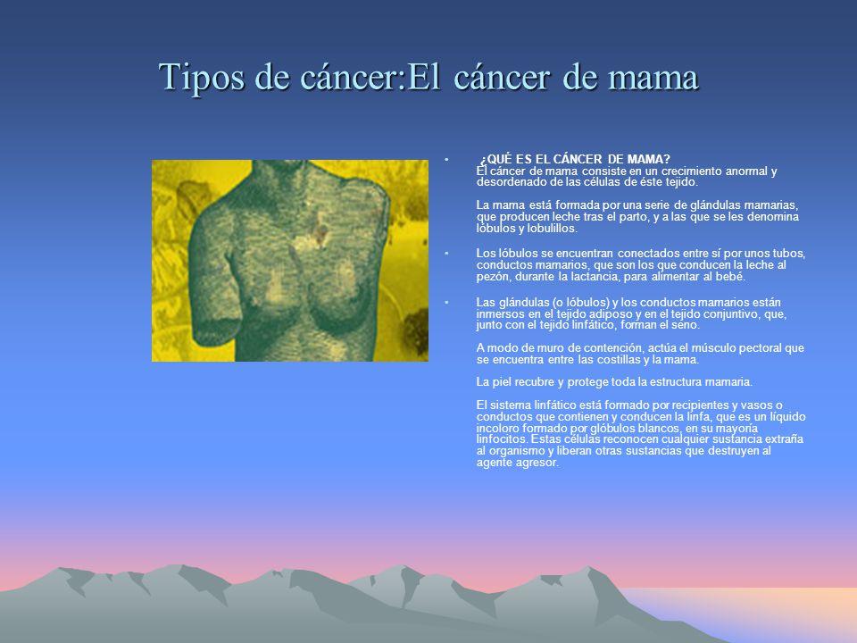 Tipos de cáncer:El cáncer de mama ¿QUÉ ES EL CÁNCER DE MAMA.