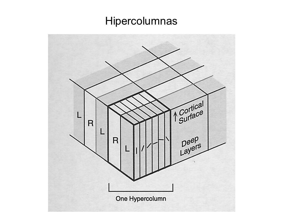 Hipercolumnas