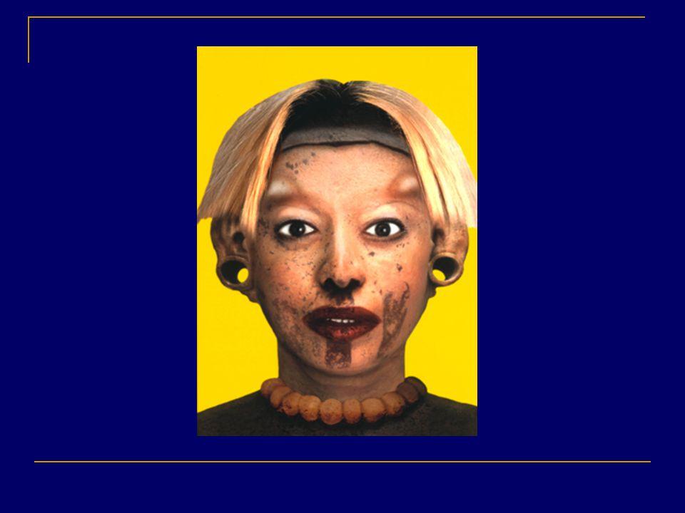 9 Orlan Refiguration, 1999