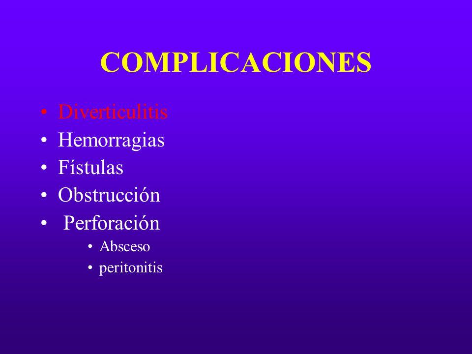 COMPLICACIONES Diverticulitis Hemorragias Fístulas Obstrucción Perforación Absceso peritonitis