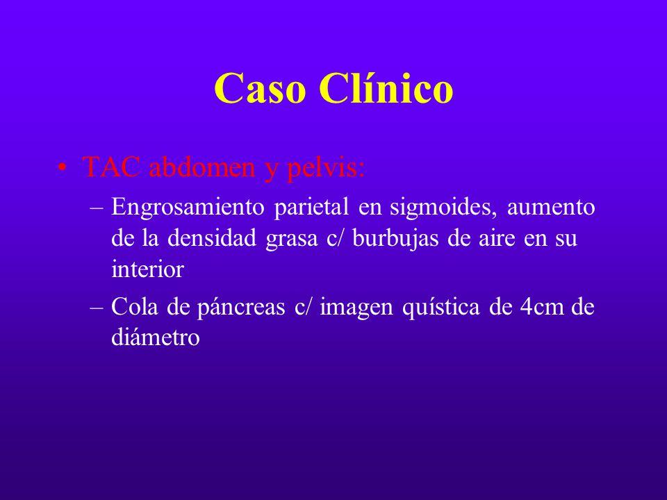 Caso Clínico TAC abdomen y pelvis: –Engrosamiento parietal en sigmoides, aumento de la densidad grasa c/ burbujas de aire en su interior –Cola de pánc