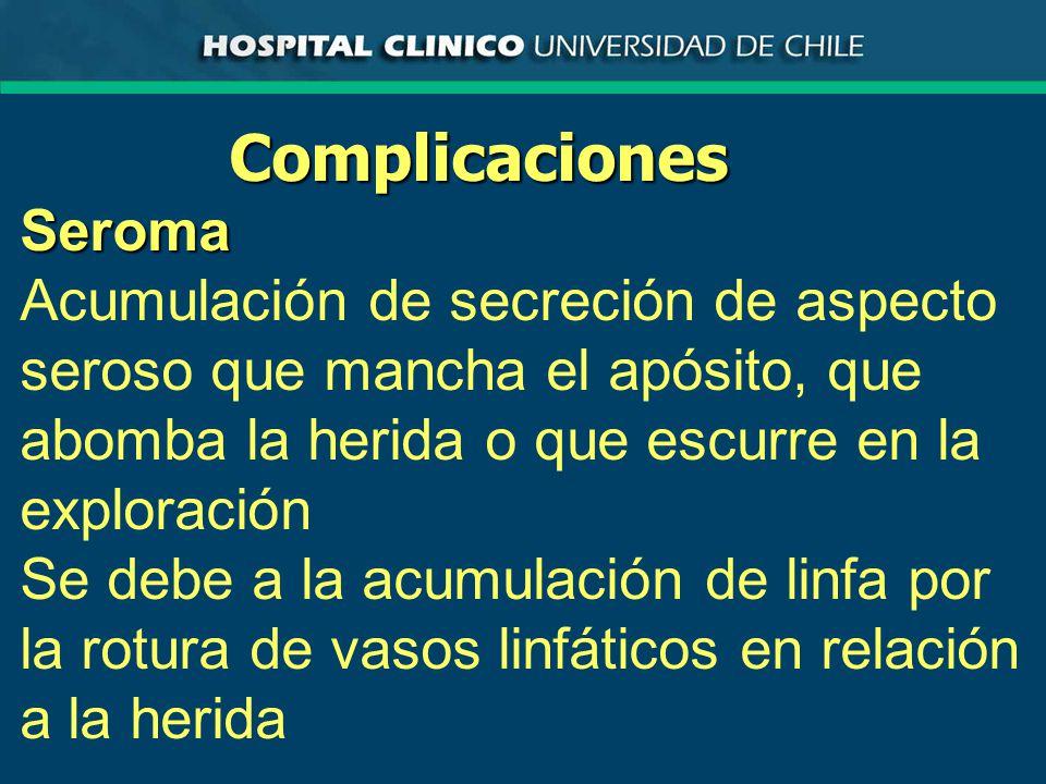 ComplicacionesSeroma Se debe a la acumulación de linfa por la rotura de vasos linfáticos en relación a la herida
