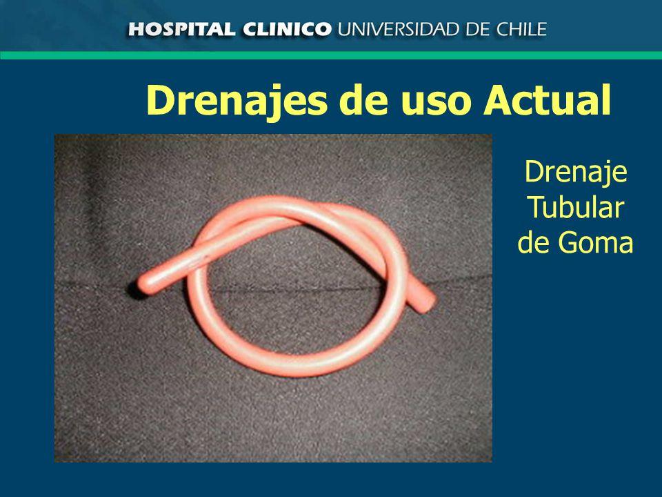Drenajes de uso Actual Drenaje Tubular de Goma