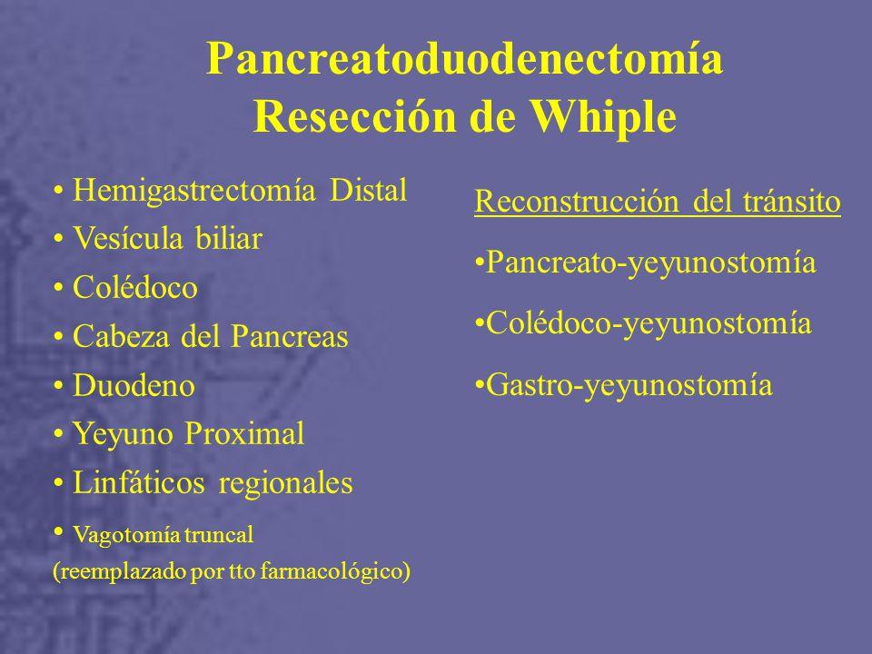 Hemigastrectomía Distal Vesícula biliar Colédoco Cabeza del Pancreas Duodeno Yeyuno Proximal Linfáticos regionales Vagotomía truncal (reemplazado por tto farmacológico) Reconstrucción del tránsito Pancreato-yeyunostomía Colédoco-yeyunostomía Gastro-yeyunostomía Pancreatoduodenectomía Resección de Whiple