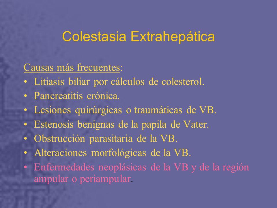 Colestasia Extrahepática Causas más frecuentes: Litiasis biliar por cálculos de colesterol.