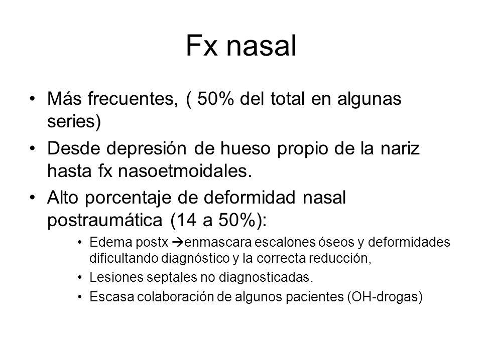 Fx nasal Más frecuentes, ( 50% del total en algunas series) Desde depresión de hueso propio de la nariz hasta fx nasoetmoidales. Alto porcentaje de de
