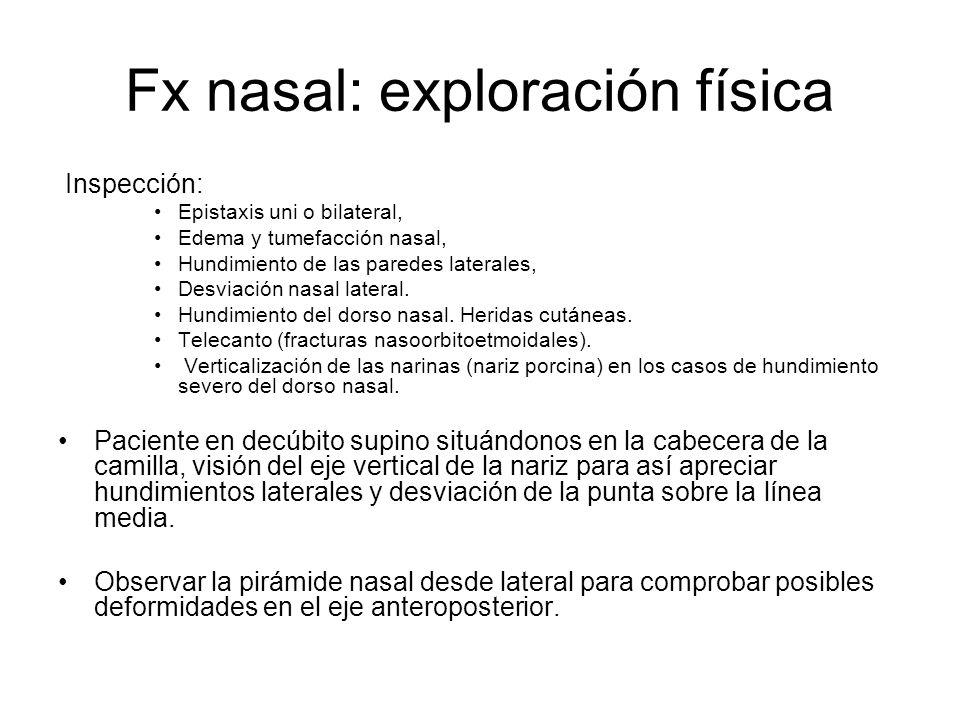 Fx nasal: exploración física Inspección: Epistaxis uni o bilateral, Edema y tumefacción nasal, Hundimiento de las paredes laterales, Desviación nasal