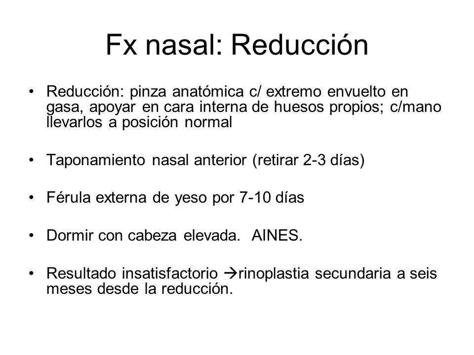 Fx nasal: Reducción Reducción: pinza anatómica c/ extremo envuelto en gasa, apoyar en cara interna de huesos propios; c/mano llevarlos a posición norm